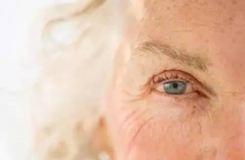 黄 染 結膜 眼球
