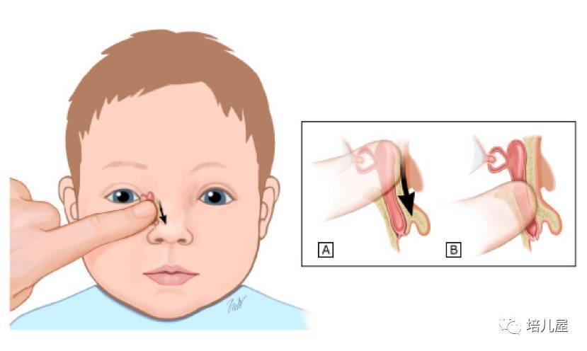 常用的方法有——泪道探通术(见视频),它是使用探针或软管通过鼻泪管