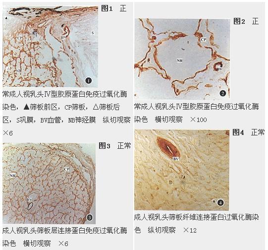 细胞外基质是由胶原,糖蛋白等大分子构成的复杂